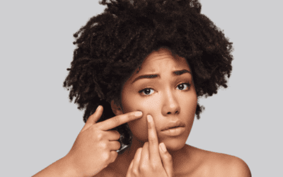 Acne: The Common and Treatable Skin Condition