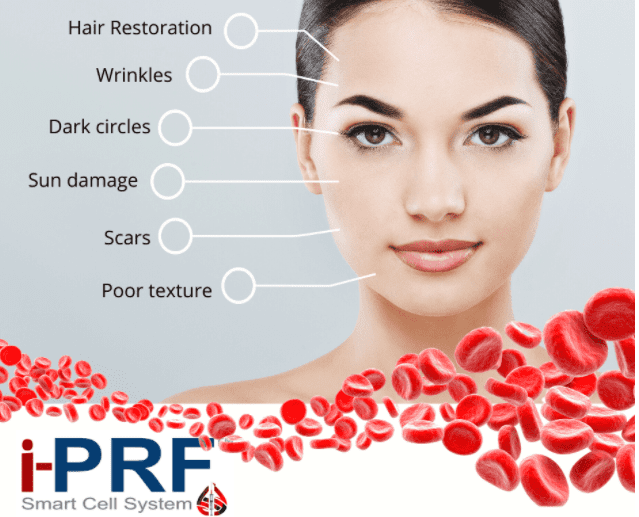 Reopening Update i-PRF Smart Cell System